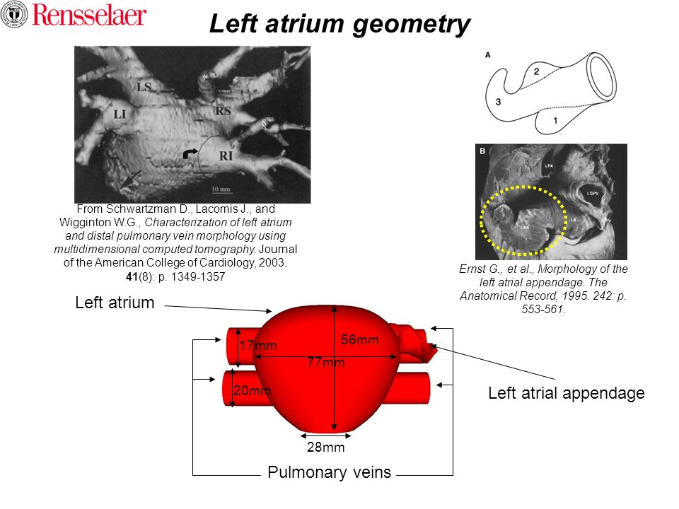 Left atrium geometry Left atrium Left atrial appendage Pulmonary veins