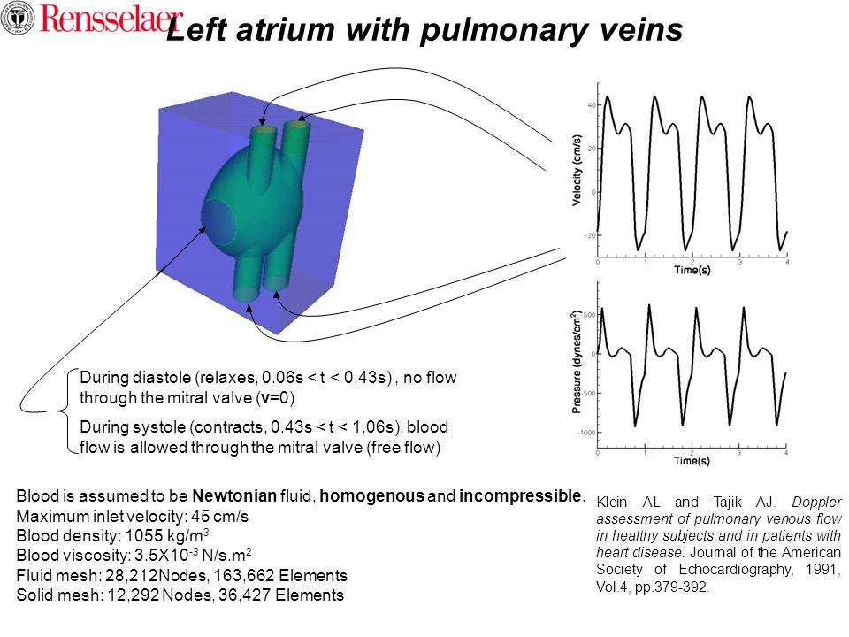 Left atrium with pulmonary veins