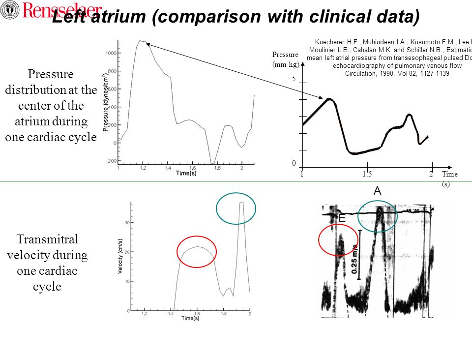 Left atrium (comparison with clinical data)