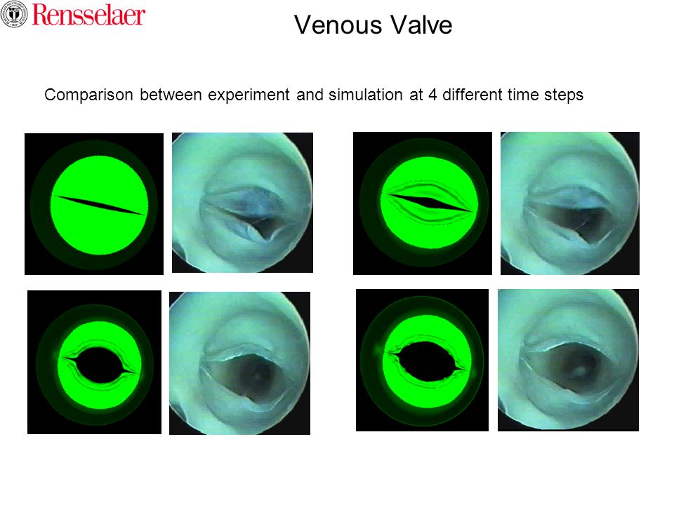 Venous Valve Comparison between experiment and simulation at 4 different time steps