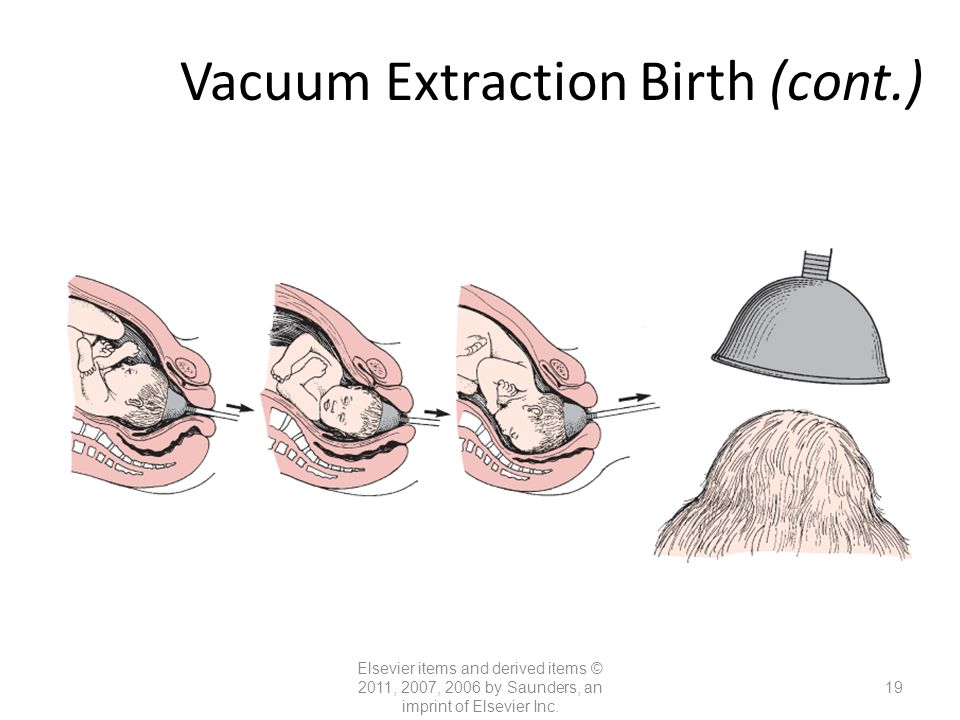 Nursing Care of Women with Complications During Labor and ... Vacuum Delivery Complications
