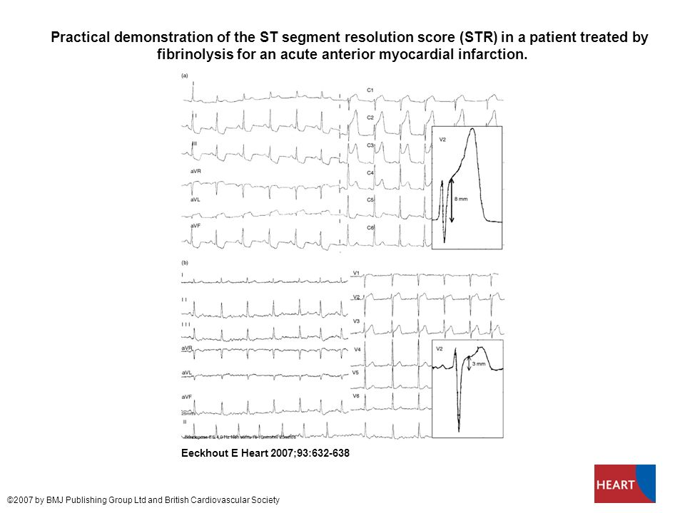 Practical demonstration of the ST segment resolution score (STR) in a patient treated by fibrinolysis for an acute anterior myocardial infarction.