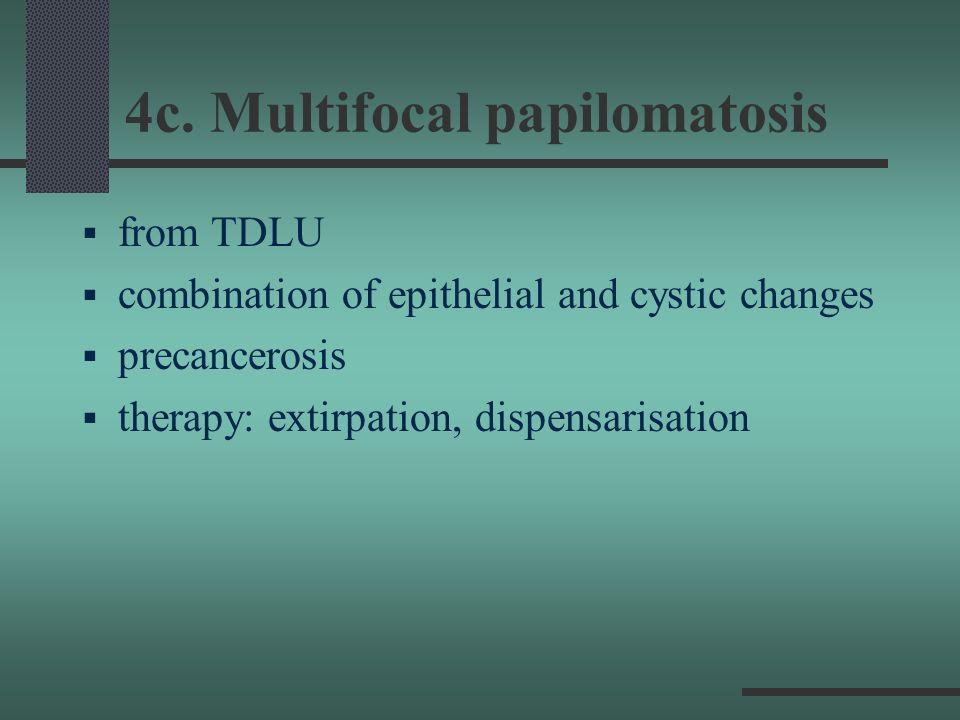 4c. Multifocal papilomatosis