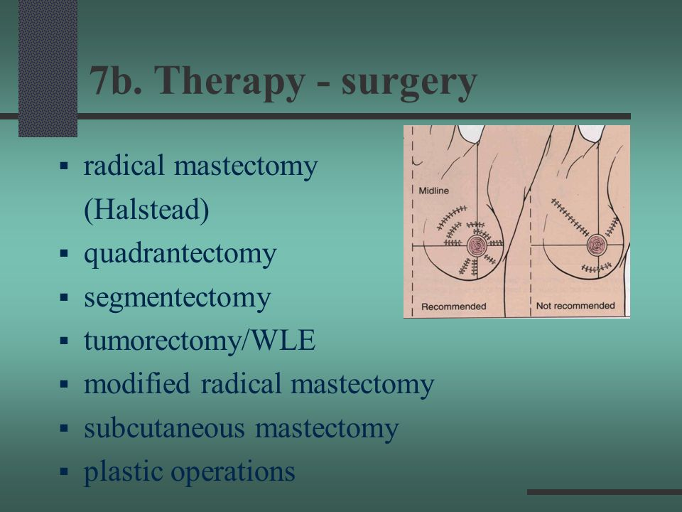 7b. Therapy - surgery radical mastectomy (Halstead) quadrantectomy