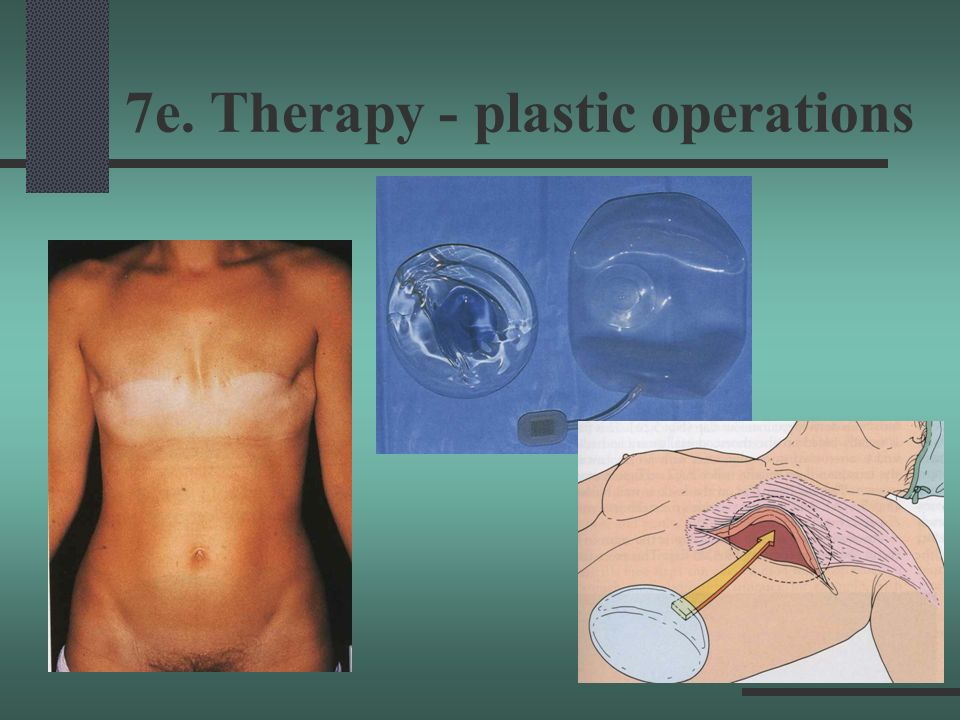 7e. Therapy - plastic operations