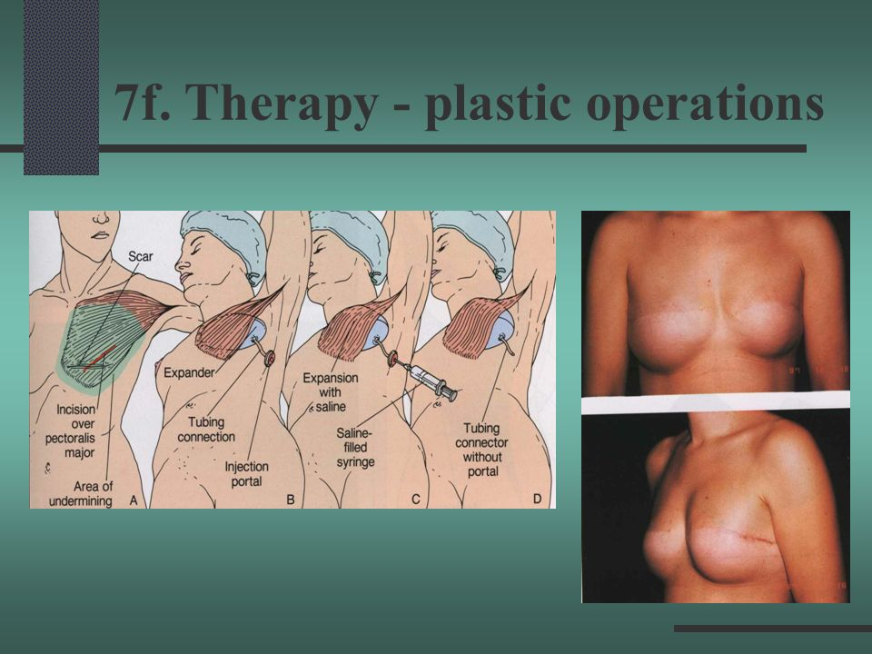 7f. Therapy - plastic operations