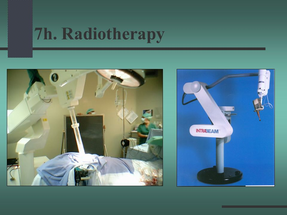 7h. Radiotherapy