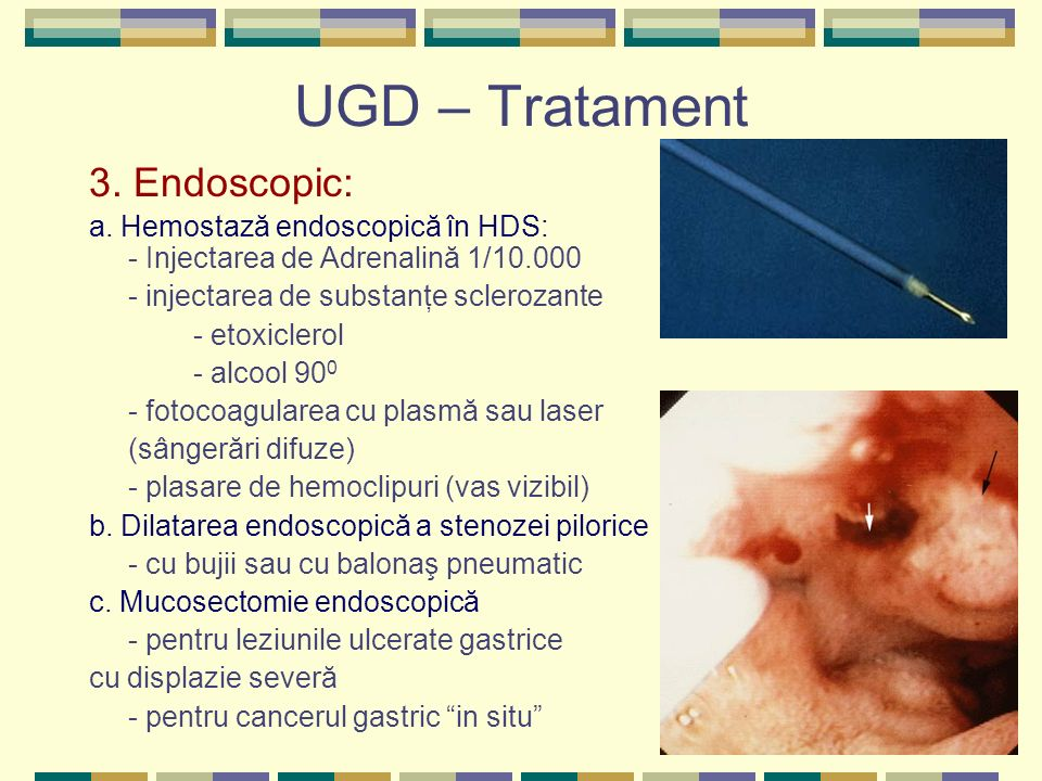 UGD – Tratament 3. Endoscopic: