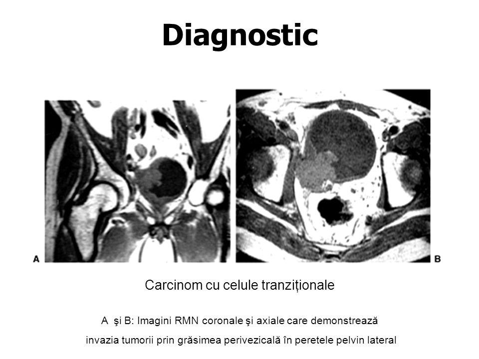 Diagnostic Carcinom cu celule tranziţionale
