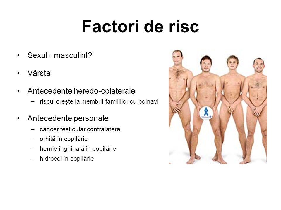 Factori de risc Sexul - masculin! Vârsta