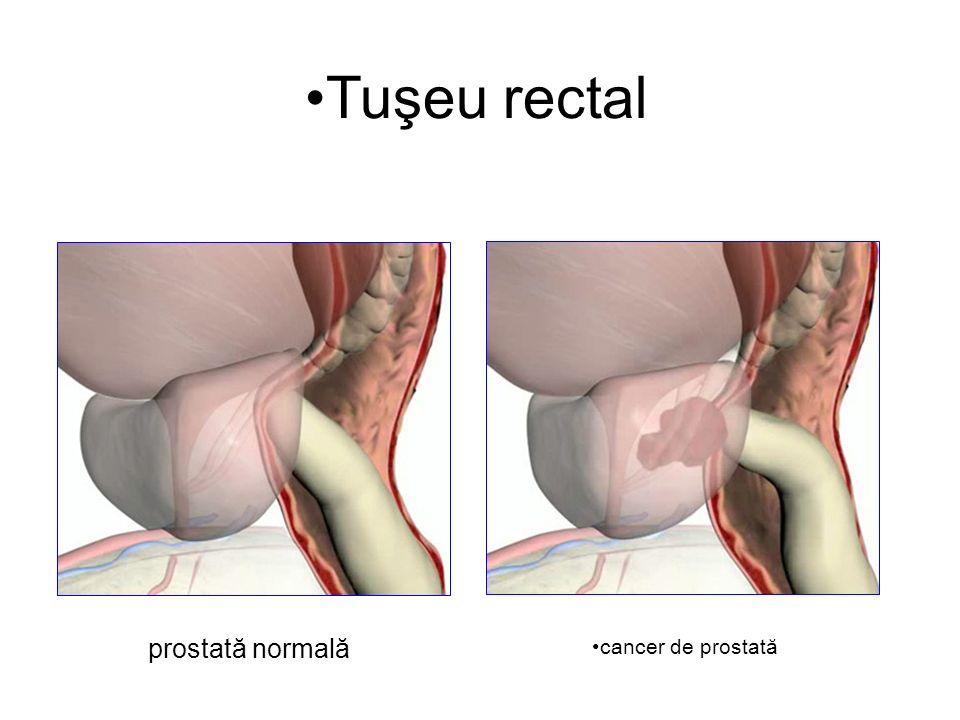 Tuşeu rectal prostată normală cancer de prostată