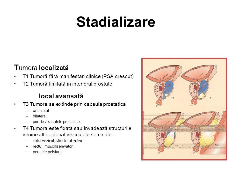 Stadializare Tumora localizată local avansată