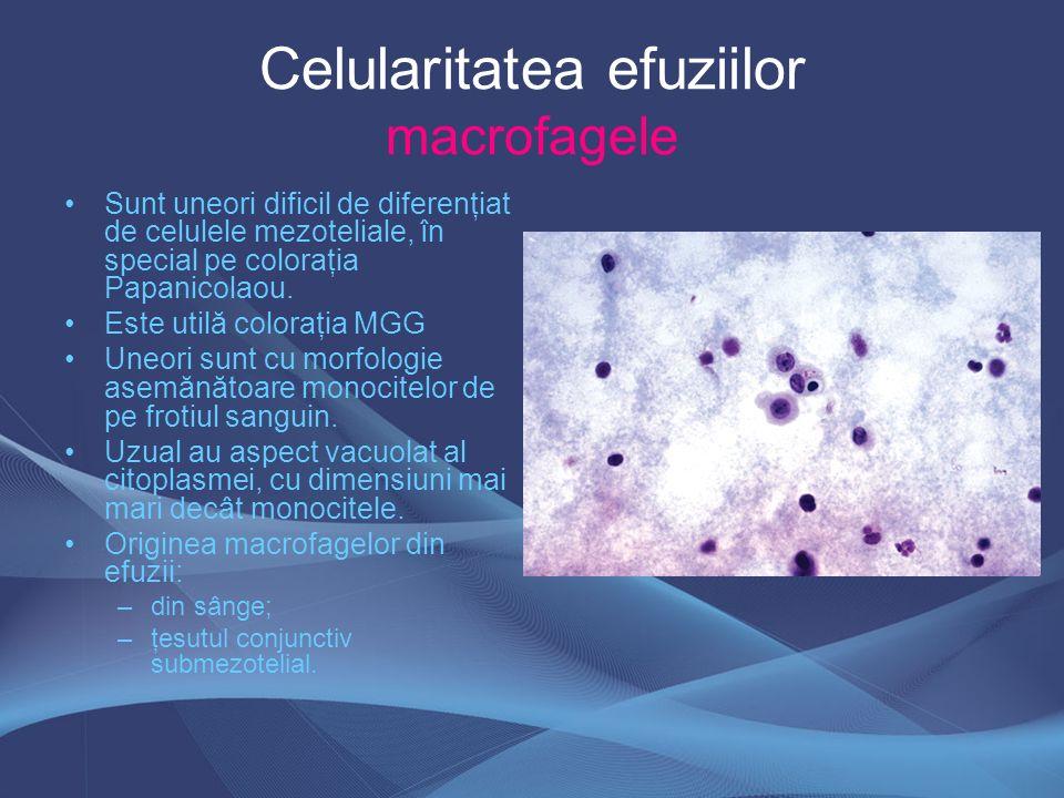 Celularitatea efuziilor macrofagele