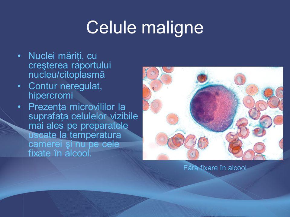 Celule maligne Nuclei măriţi, cu creşterea raportului nucleu/citoplasmă. Contur neregulat, hipercromi.