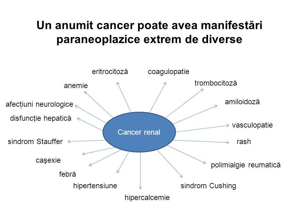 Un anumit cancer poate avea manifestări paraneoplazice extrem de diverse