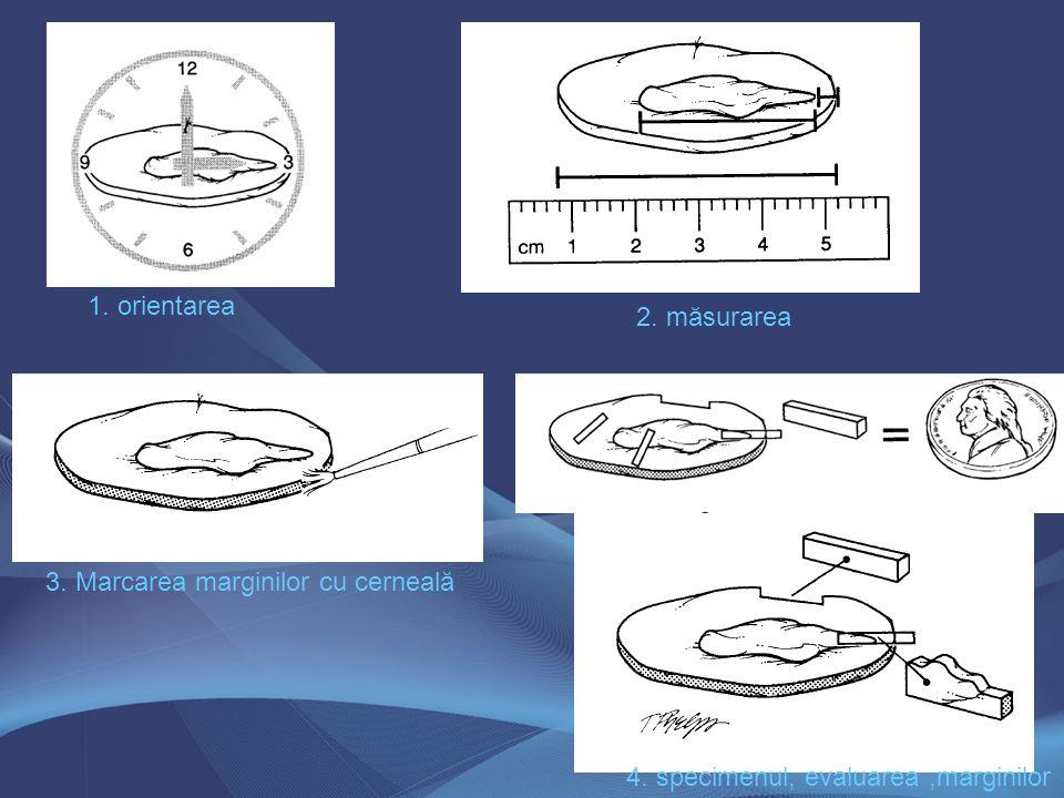 1. orientarea 2. măsurarea 3. Marcarea marginilor cu cerneală 4. specimenul, evaluarea ,marginilor