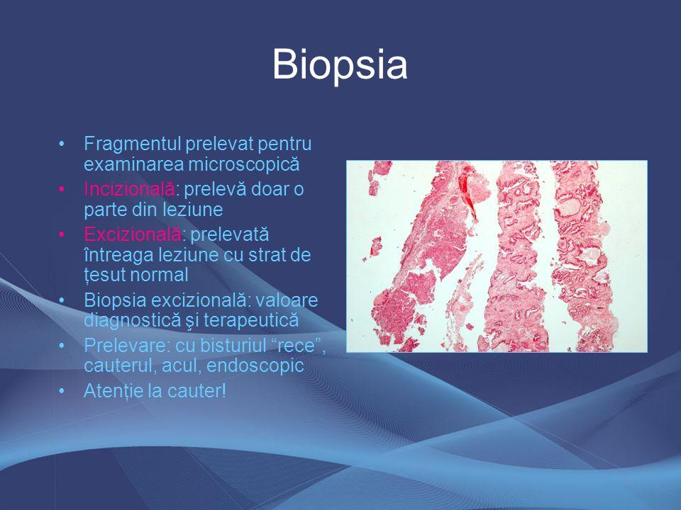 Biopsia Fragmentul prelevat pentru examinarea microscopică