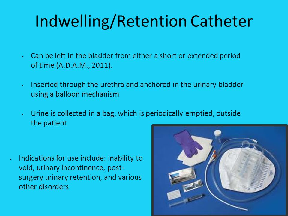 urinary retention Incomplete emptying of the bladder defining characteristics: measured urinary residual 150 to 200 ml or 25% of total bladder capacity obstructive lower urinary tract symptoms (poor force of stream, intermittency of stream, hesitancy of urination, postvoiding dribbling, feelings of incomplete bladder emptying.