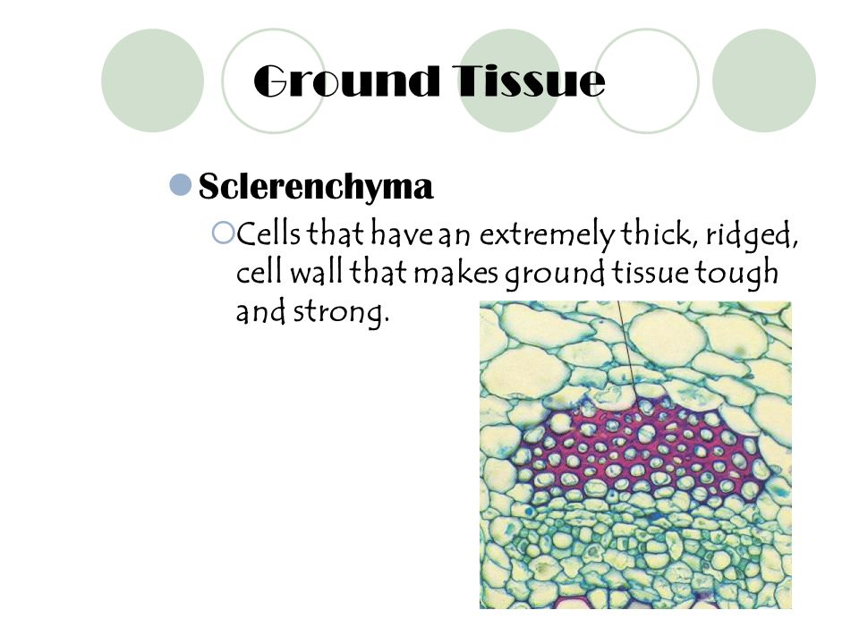 Ground Tissue Sclerenchyma
