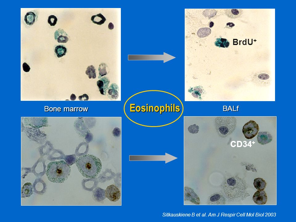 Eosinophils BrdU+ CD34+ Bone marrow BALf