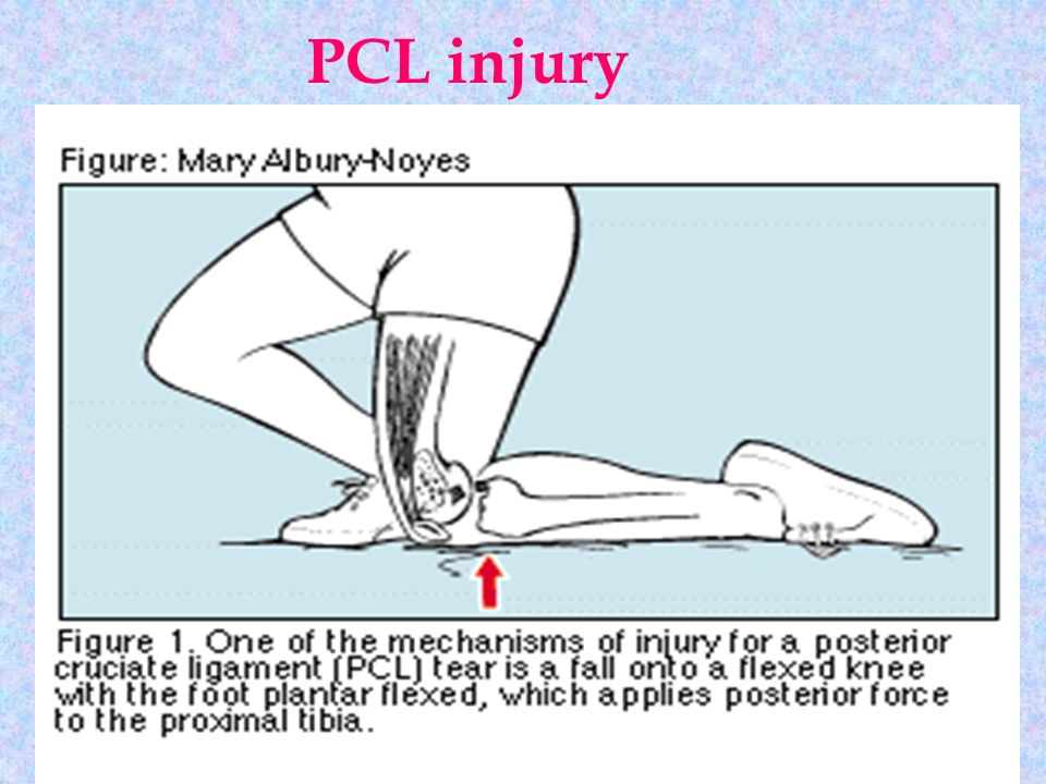 Location Of Mcl Pain