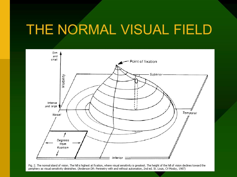 visual fields in glaucoma Visual field testing is a way for your eye doctor to determine if you are experiencing vision loss from glaucoma visual field testing involves staring straight ahead into a machine and clicking a button when you notice a blinking light in your peripheral vision.