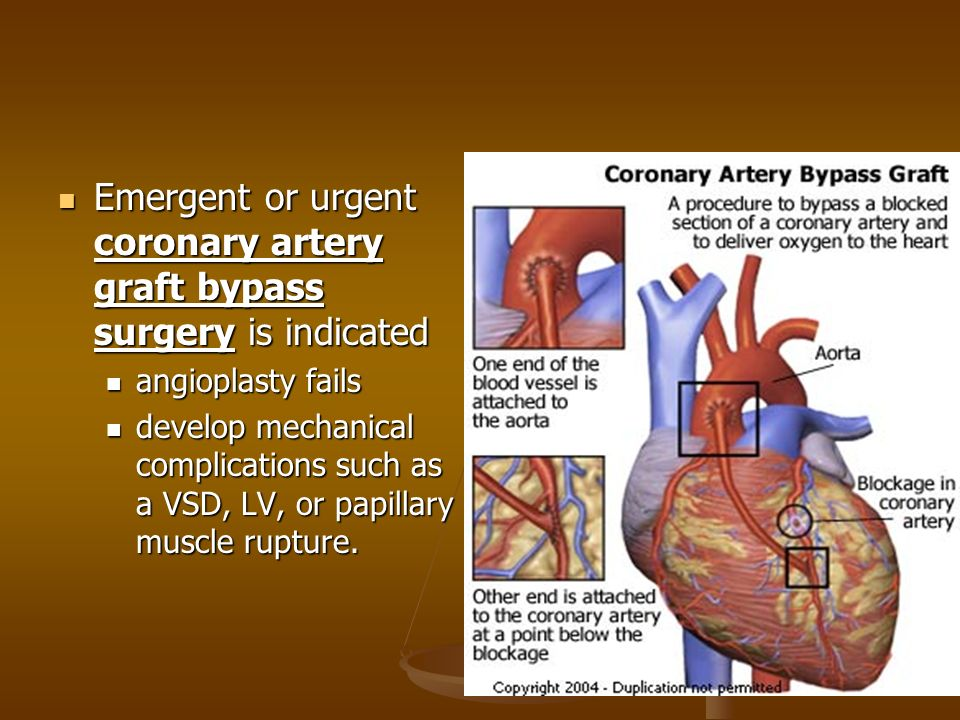 the alternatives to coronary bypass surgery 15042014 youtube premium loading  find out why close alternatives to bypass surgery dr malcolm dorman  coronary artery bypass (cabg) surgery - duration:.