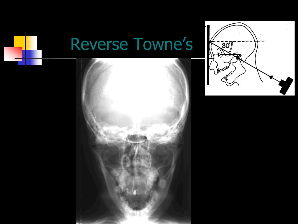 Skull Fracture C Section Skull Fracture In A Toddler