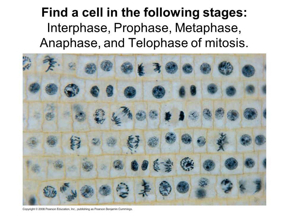 Find a cell in the following stages: Interphase, Prophase, Metaphase, Anaphase, and Telophase of mitosis.