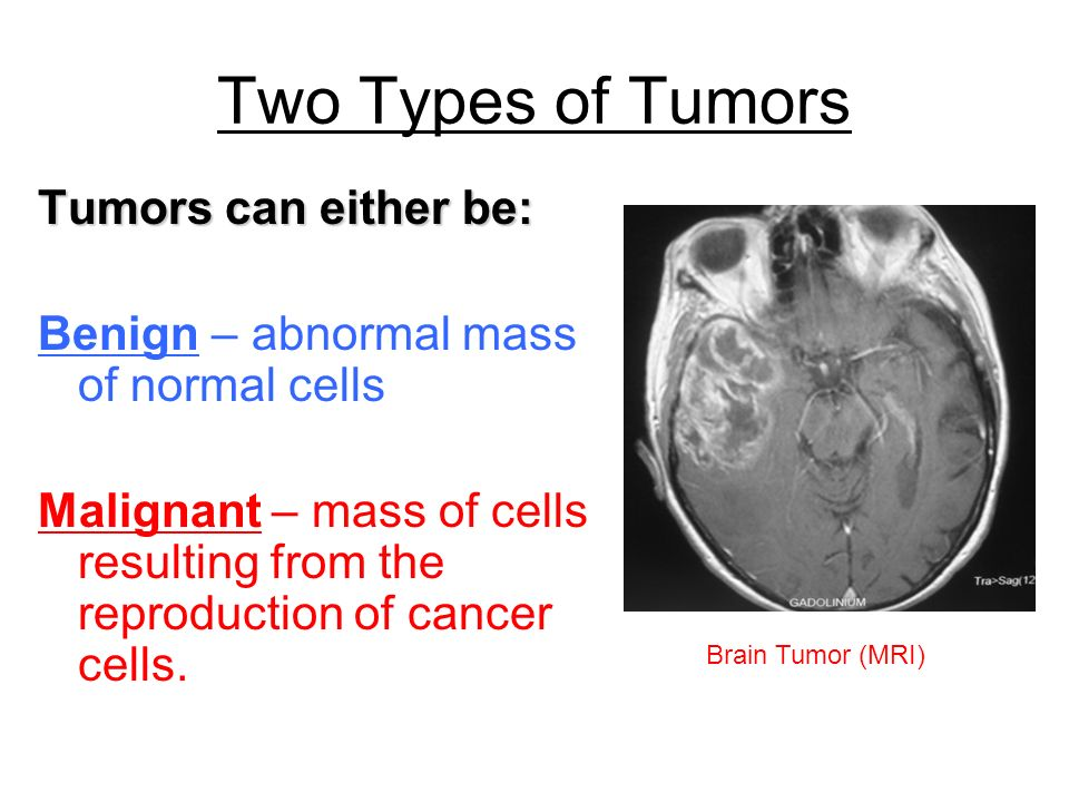 Two Types of Tumors Tumors can either be: