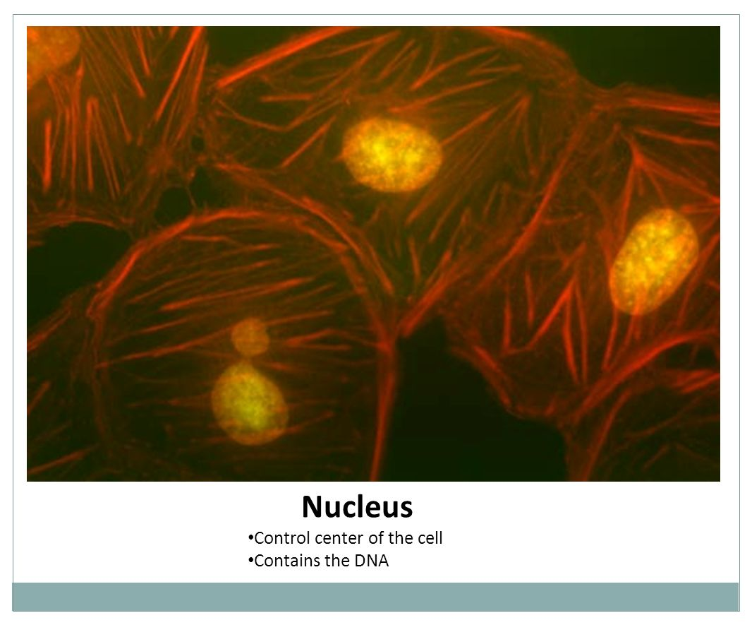 Nucleus Control center of the cell Contains the DNA