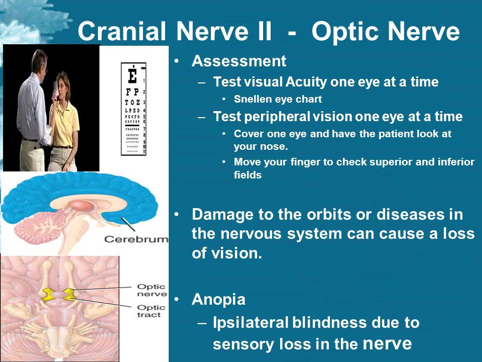 lab exercise 11 cranial nerves ppt video online download. Black Bedroom Furniture Sets. Home Design Ideas