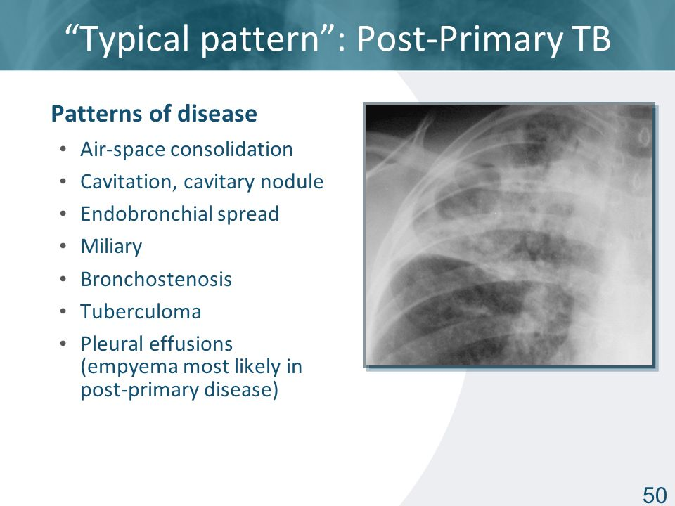Basic Chest Radiology for the TB Clinician - ppt video ...