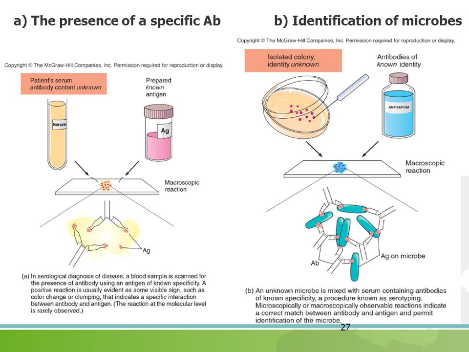 a) The presence of a specific Ab b) Identification of microbes