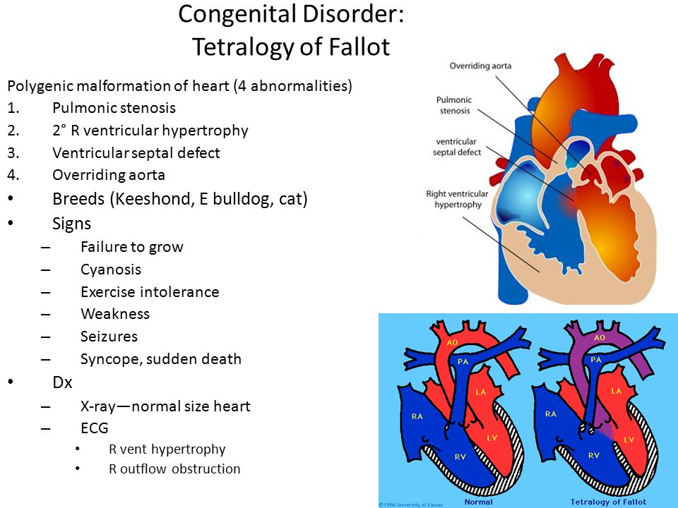 Cardiorespiratory Diseases Ppt Download