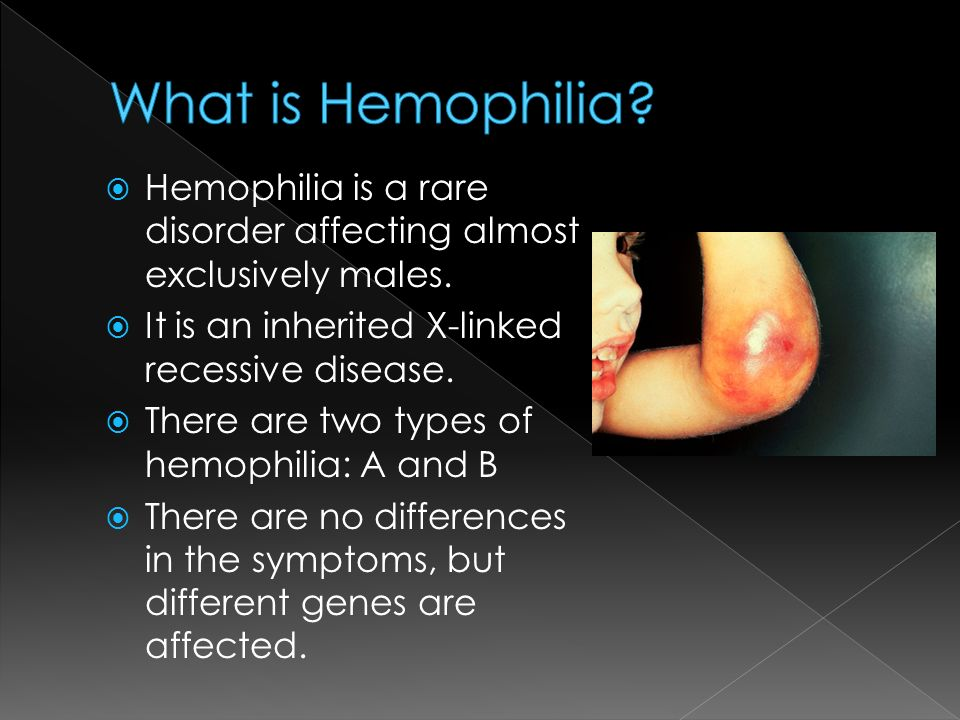 hemophilia a summary Immediately download the haemophilia summary, chapter-by-chapter analysis, book notes, essays, quotes, character descriptions, lesson plans, and more - everything you need for studying or teaching haemophilia.