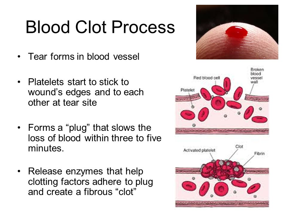 blood clotting 2 essay View essay - disc 52 from biol 301 at md university college week 5 concepts 1 how would you expect the extended use of antibiotics to affect blood clotting 2.
