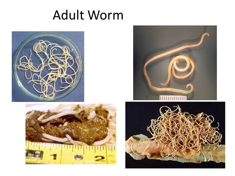 Adult Worm 110
