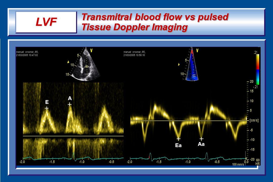 LVF Transmitral blood flow vs pulsed Tissue Doppler Imaging A E Ea Aa