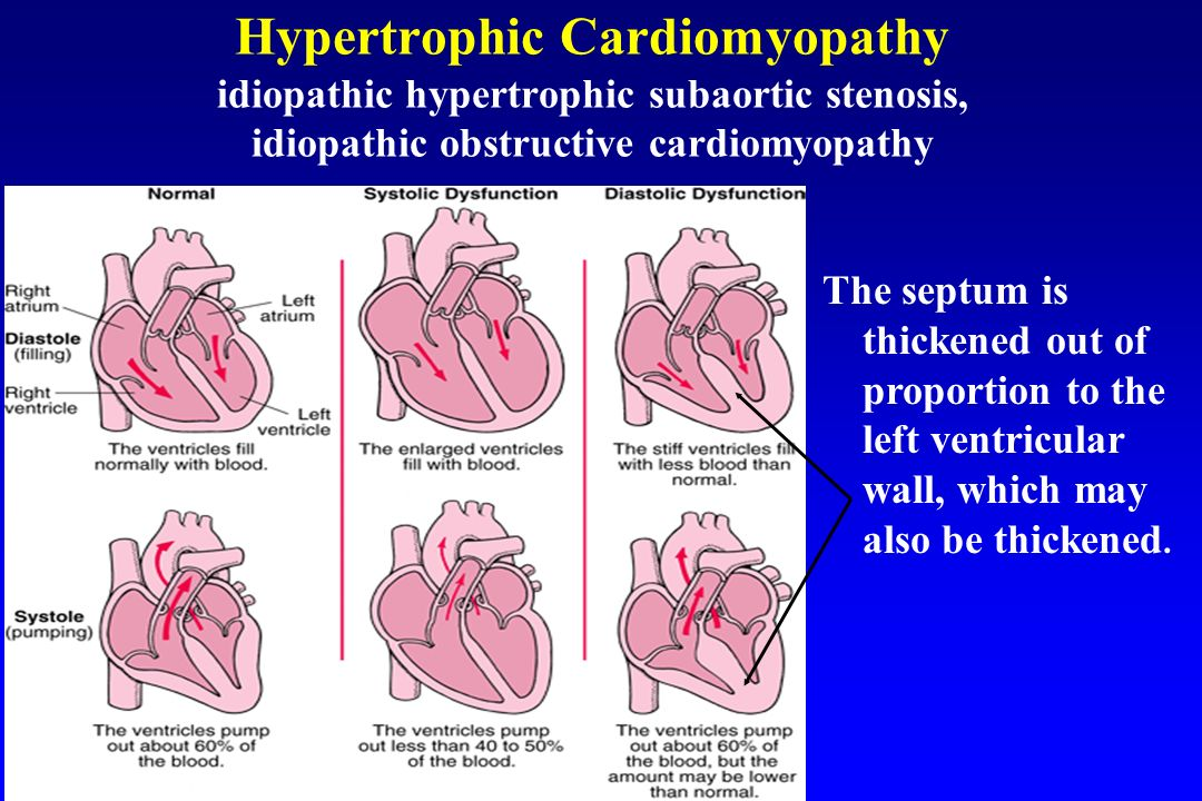 Nonrheumatic carditis in children ppt video online download for Aortic mural thrombus management