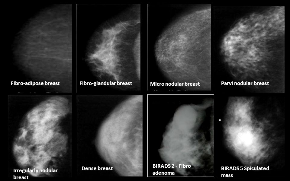 glandular breast disorders
