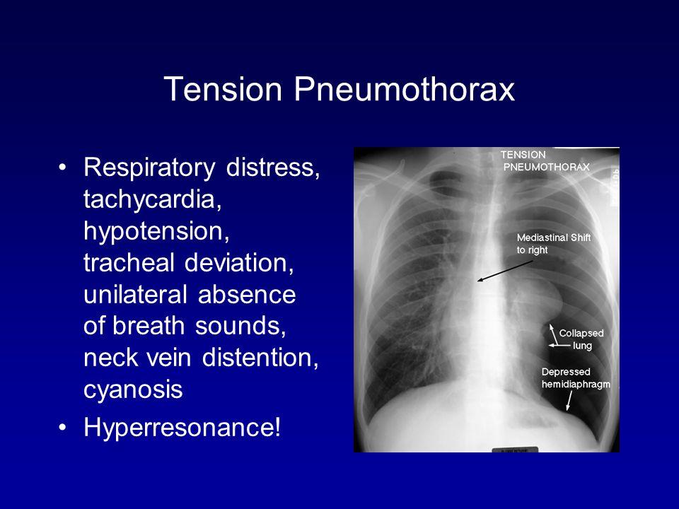 thoracic surgery a pleural problem primer ppt video