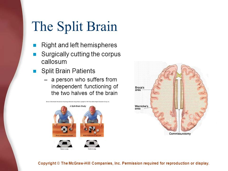 essays on split brain patients What is normal in the split-brain patients' behaviorwill be described firstsome of the many dimensions of conscious awareness include orientation to space andtime, knowledge of human biological and sociological context, intentionality, and so on.