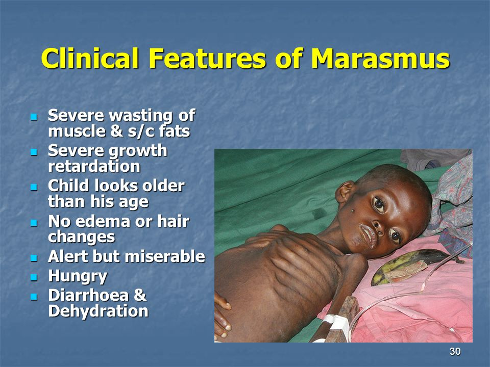 Malnutrition In Children Principles Of Dehydration