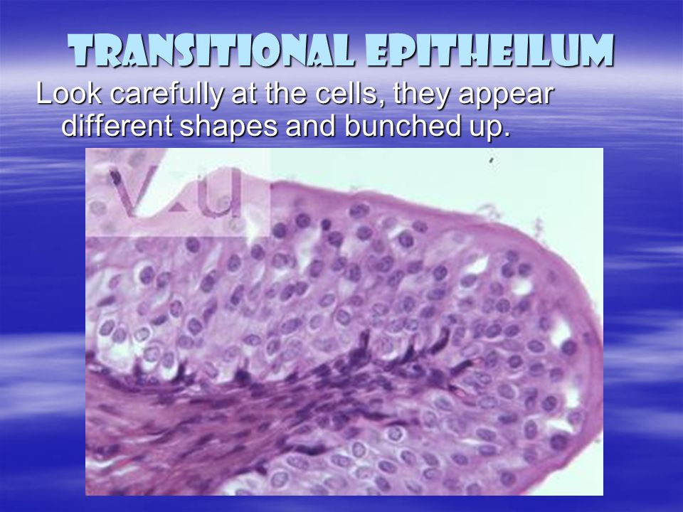 bladder epithelium essay Connective tissue and simple columnar epithelium essay example have created is your maniken® going to be male or female with your partner, decide on a name for.