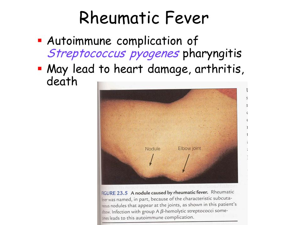 rheumatic fever Rheumatic fever is a very rare complication that can develop after a bacterial throat infection it can cause painful joints and heart problems.