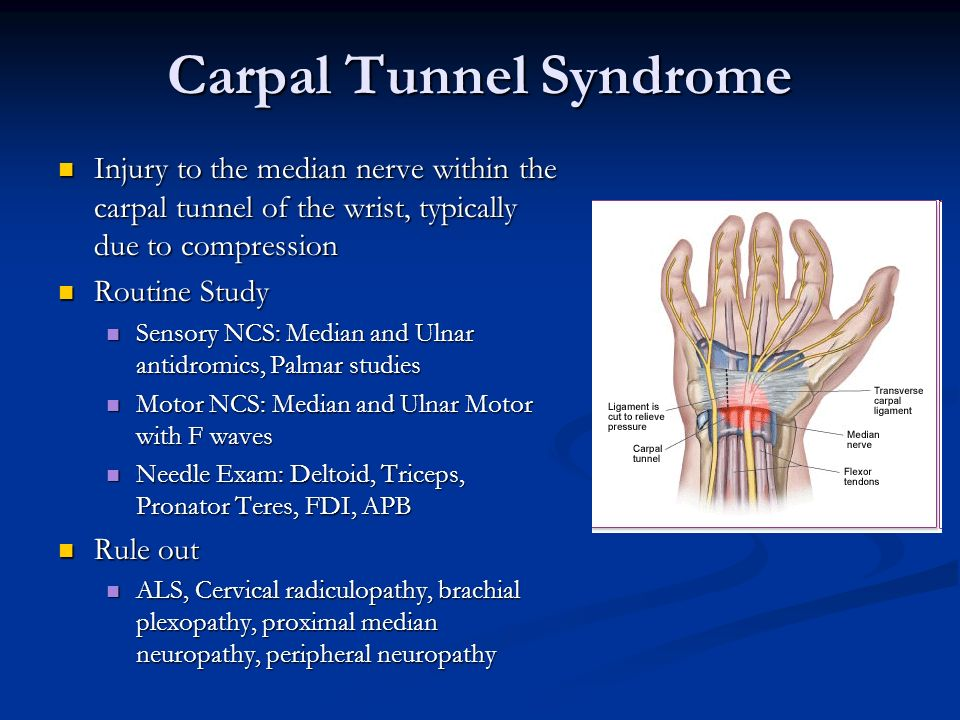 Diagnostic properties of nerve conduction tests in ...