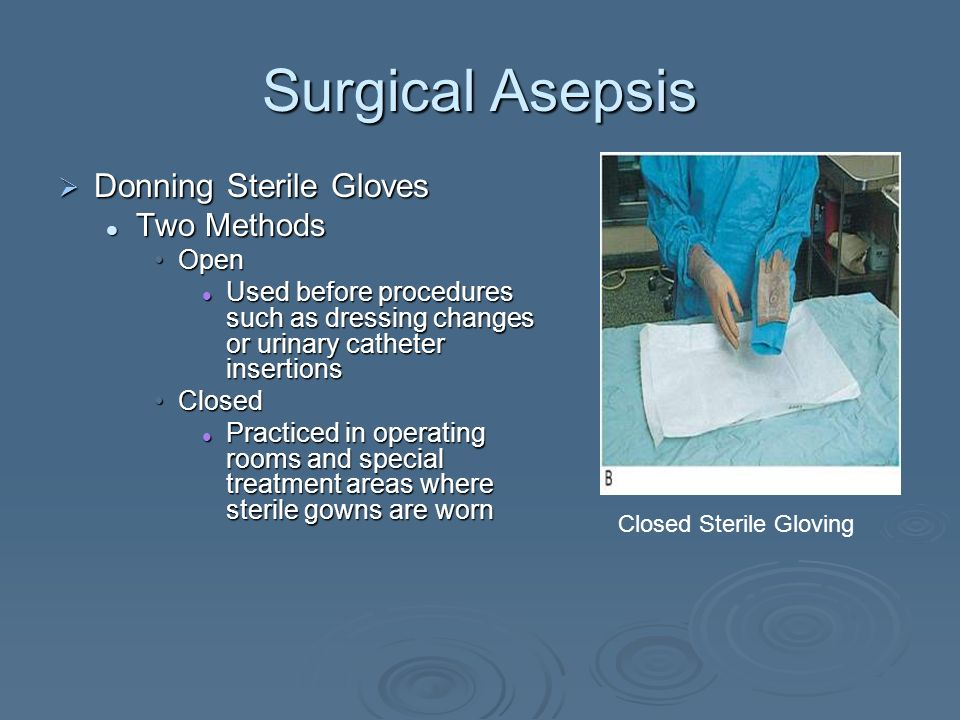 Exelent How To Put On A Sterile Gown Images - Images for wedding ...