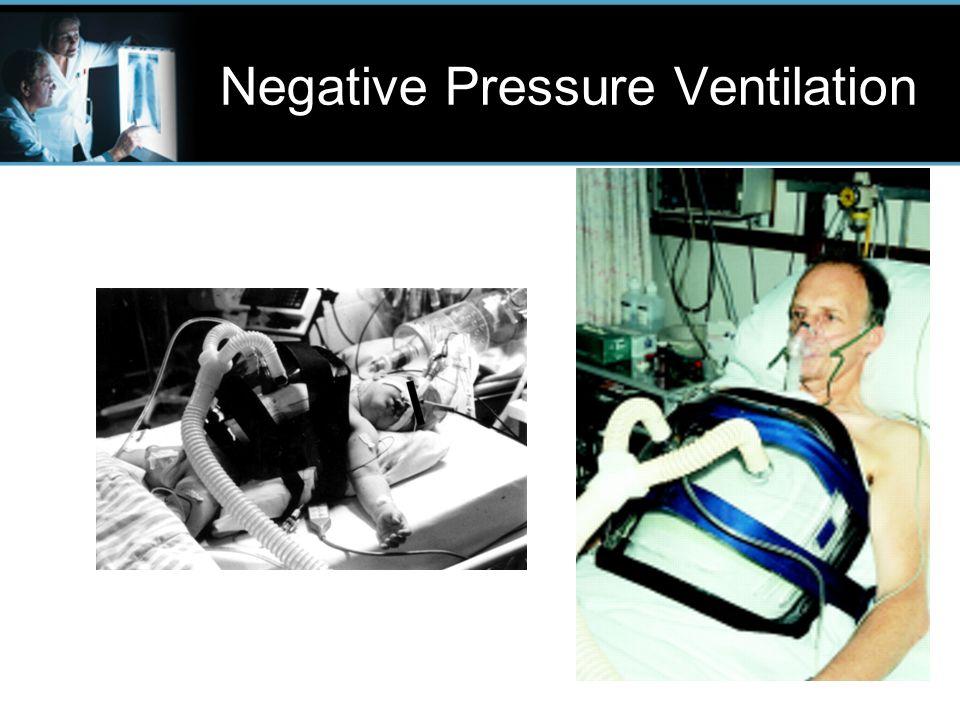 Ventilator Classification - ppt download
