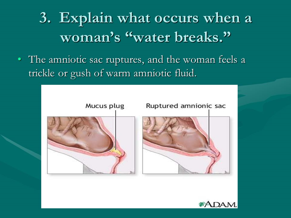 3. Explain what occurs when a woman's water breaks.